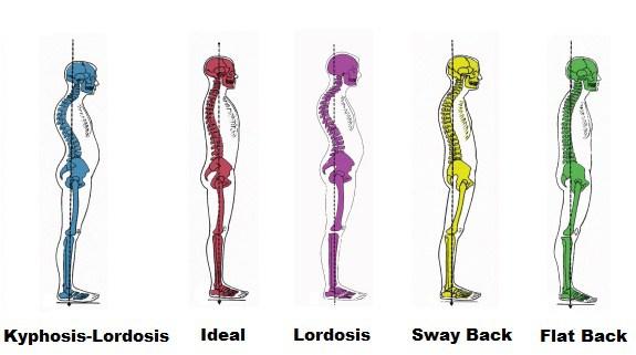 bonne et mauvaise posture